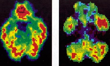 Brain Normal Function Scans of a Normal Brain Left